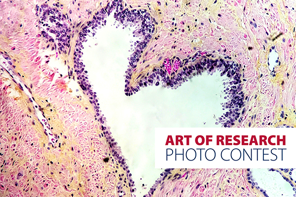 [Queen's Art of Research Photo Contest]