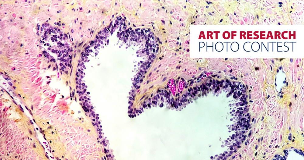 """Love Under the Microscope"" by Dalila Villalobos, MD, Resident (Anatomical Pathology)"