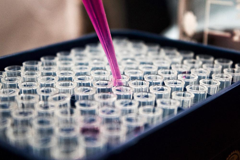 [lab testing]